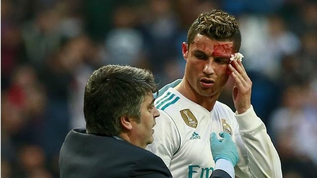 Cập nhật tình hình chấn thương của Cristiano Ronaldo